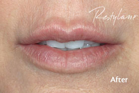 Female Restylane After Results